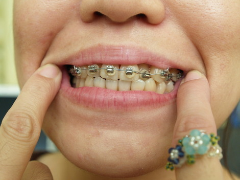 フィリピン・セブ市で歯科矯正